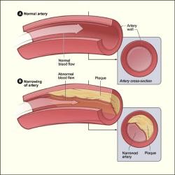 colesterol que taponea arterias